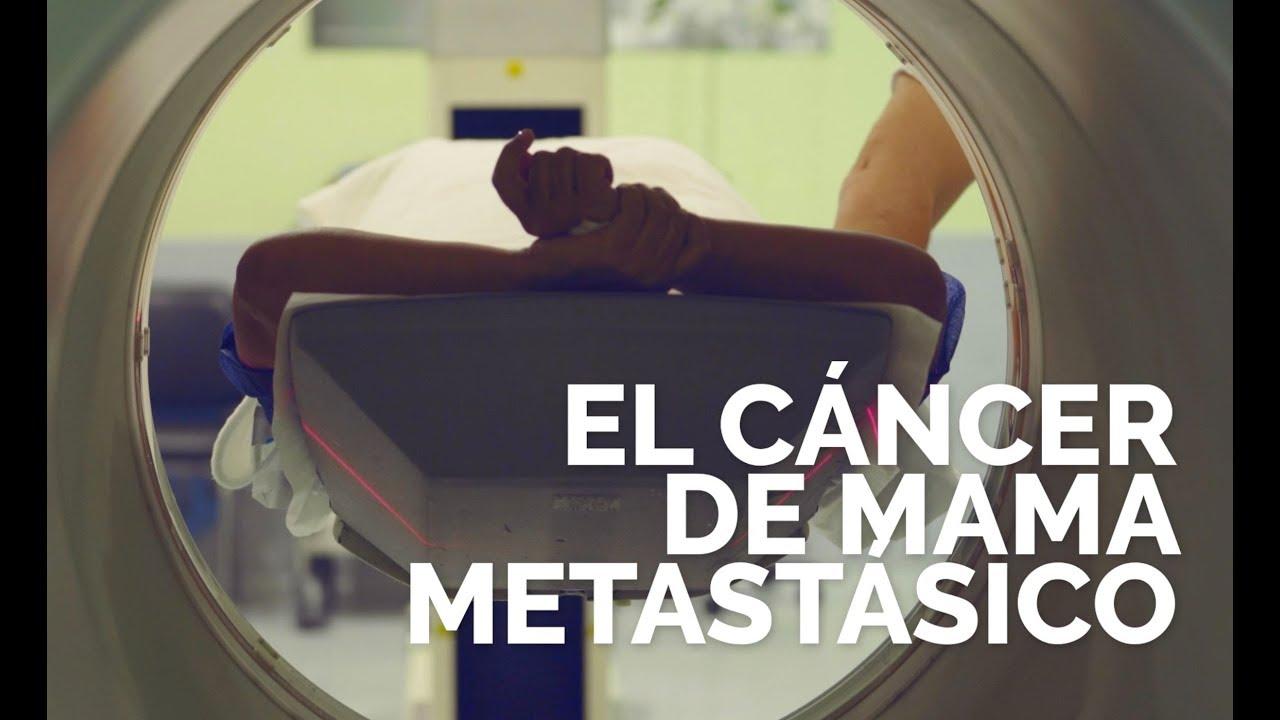 Diagnóstico-de-cáncer-de-mama-metastásico.Y-ahora-¿qué-debo-hacer